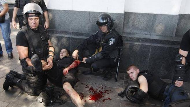 Пострадавшие в результате столкновений в центре Киева 31 августа 2015